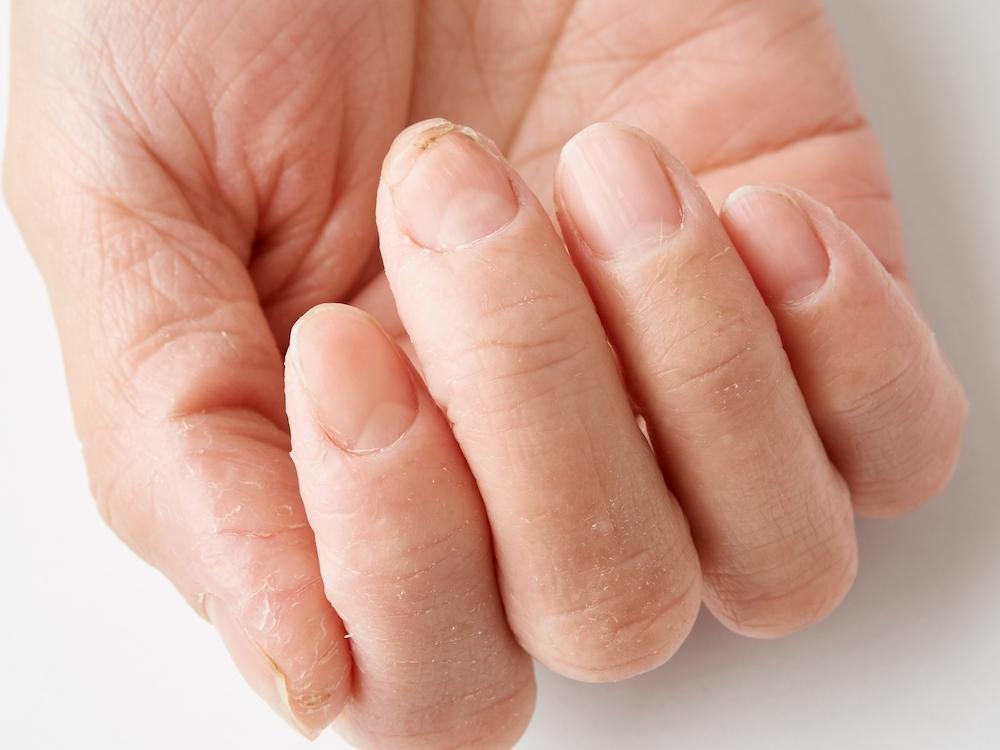 手のあれ、湿疹