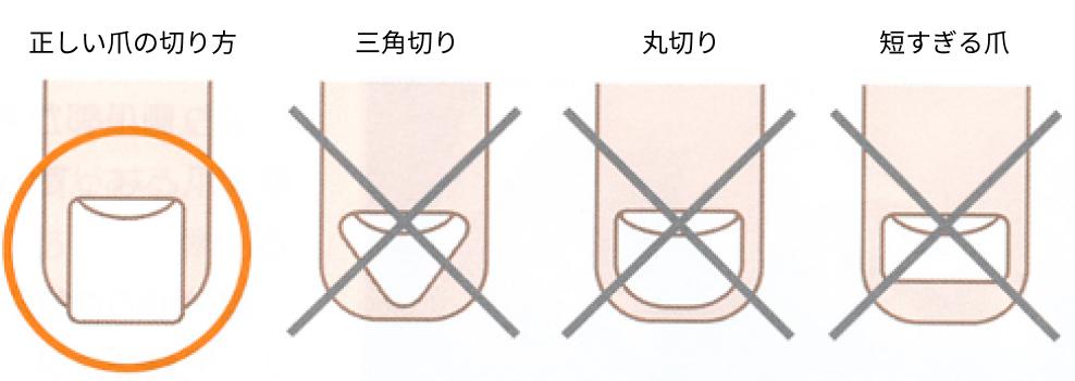 正しい爪の切り方