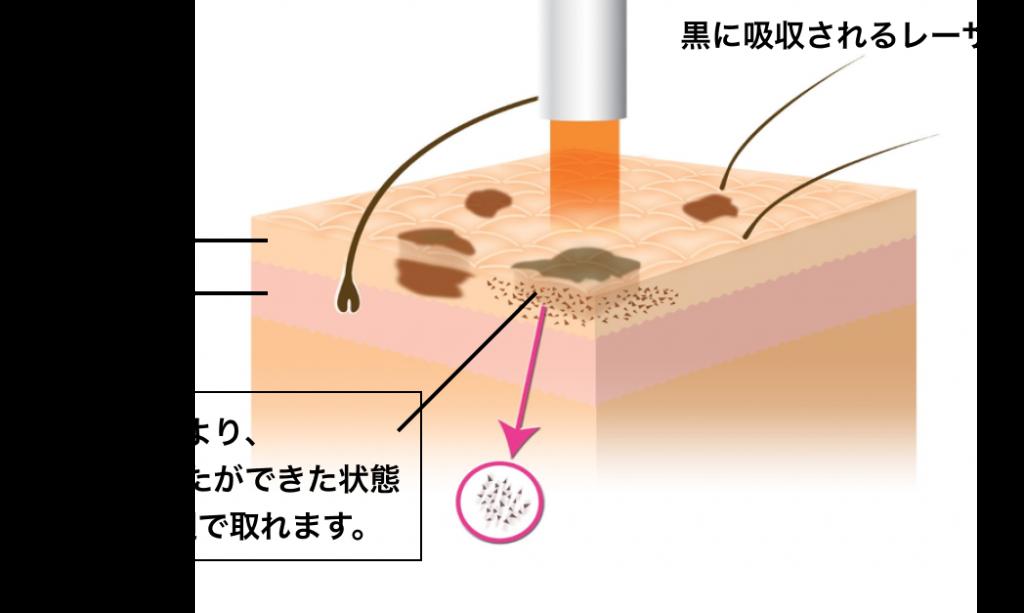 色素性疾患レーザー治療のイメージ